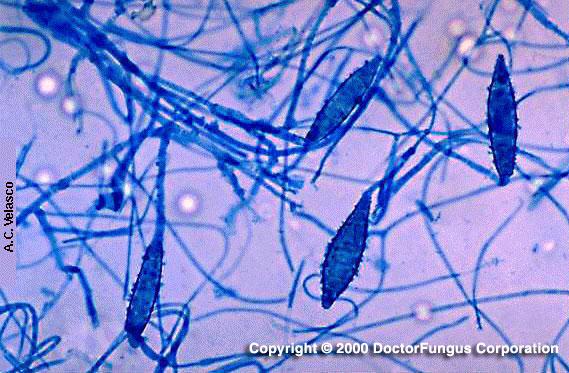 犬小芽胞菌